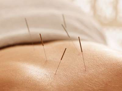 Acupuncture needles on person's back.