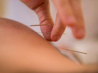Acupuncture newels being placed