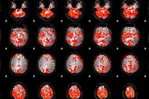 fMRI images of Dr. Sun's brain as he practices qigong.